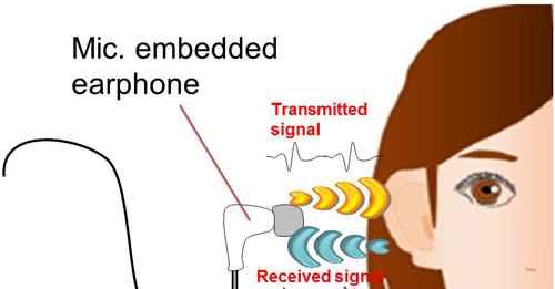Sisteam trasmissione suoni orecchio